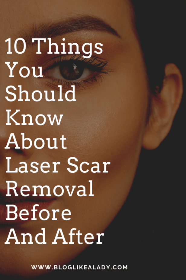 10 Things You Should Know About Laser Scar Removal Before And After