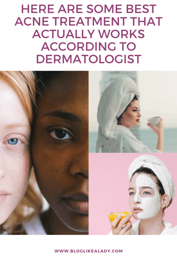 Here Are Some Best Acne Treatment That Actually Works According To Dermatologist