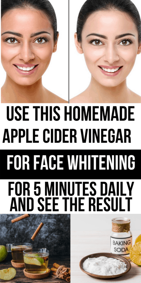 Apply This Apple Cider Vinegar And Baking Soda For Skin Whitening