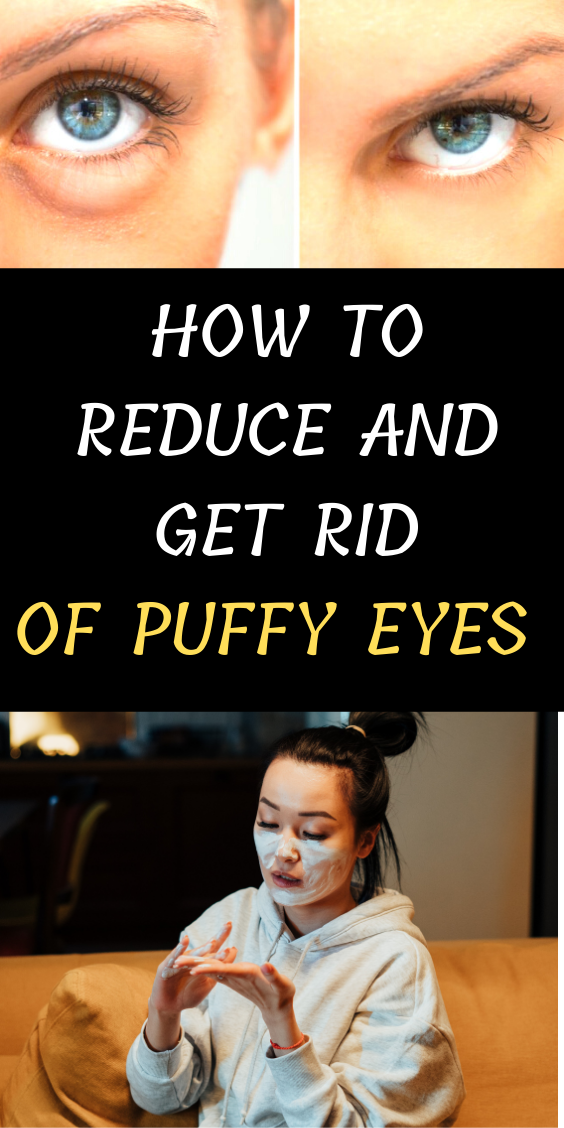 HOW TO REDUCE AND GET RID OF PUFFY EYES